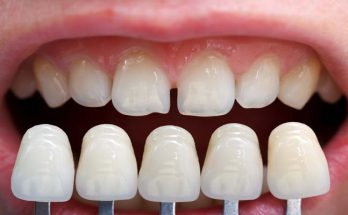 What Is An Orthodontist? Best Orthodontist In Ryde
